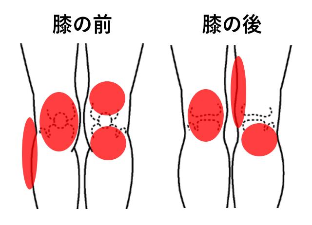 松戸市,変形性膝関節症,整形外科,病院