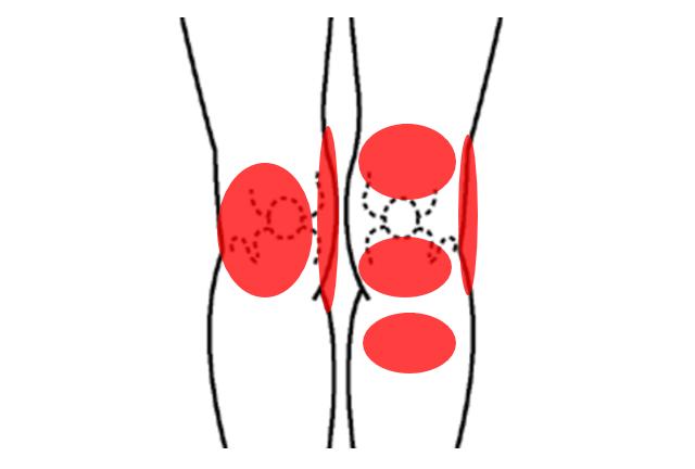 ジャンパー膝の痛む場所
