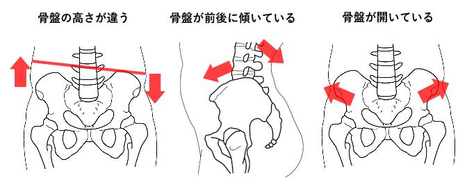 松戸市骨盤矯正タイプ