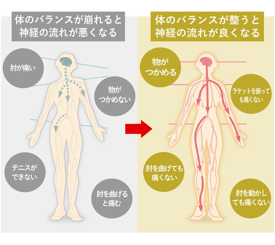 松戸市のテニス肘(上腕骨外側上顆炎)で選ばれる整体2