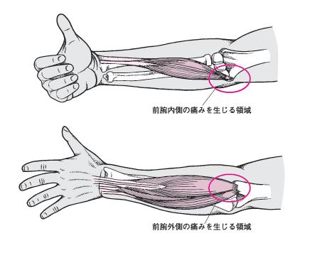 松戸市のテニス肘(上腕骨外側上顆炎)のメカニズム