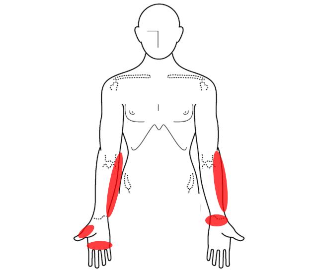 腱鞘炎の痛む場所