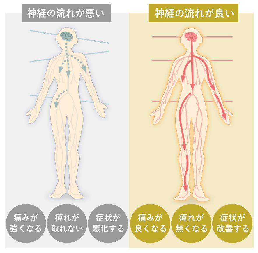 AS療法の詳しい説明